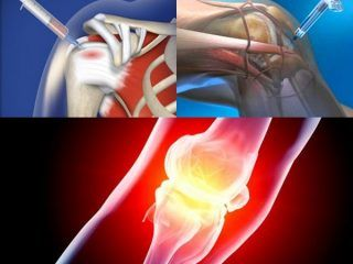 Inyectables Osteoartritis
